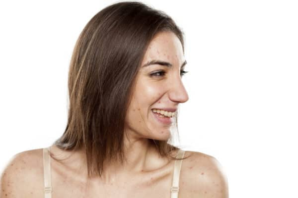 Why Acne is Your Friend, Not Your Foe - What Your Acne Is Telling You