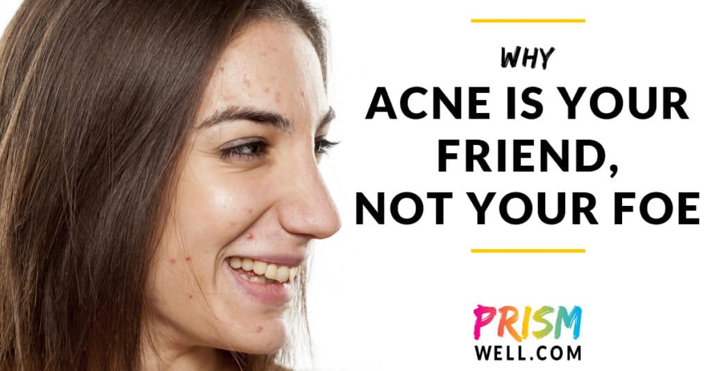 Why Acne Is Your Friend, Not Your Foe