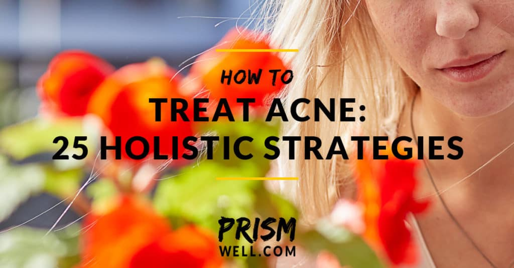 How to Treat Acne: 25 Holistic Strategies that Don't Just Mask Symptoms